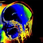 Utah Brain Injury Attorney